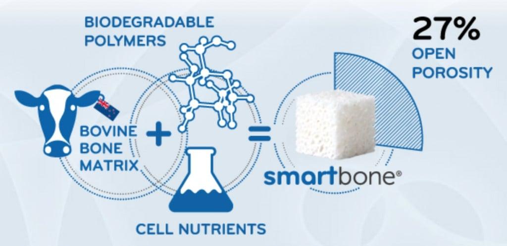 smartbone