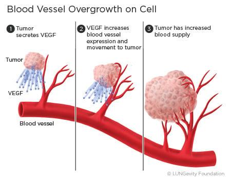 Angiogenesis is blocked by Bevacizumab (Source: Lungevity Foundation)