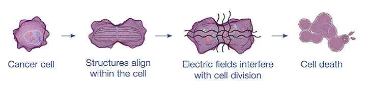 Alternating electric field therapy uses low frequency electrical fields to disrupt solid tumor cell division (Source: NovoCure)