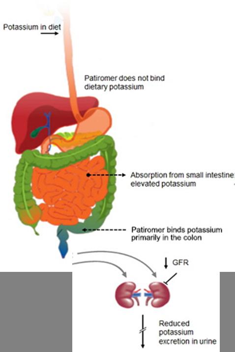 Mechanism of how Patiromer works - Relypsa's oral suspension for hyperkalemia. (Source: Relypsa)