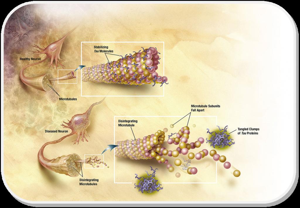 Hyperphosphorylation of the Tau protein causes neuronal damage in Alzheimer's Disease