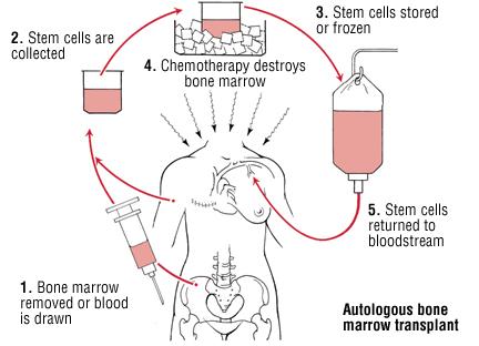 Source: Harvard Health Publications