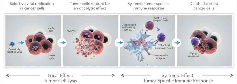 Delivery of T-VEC via the OncoVex viral vector stmulates antigen ((Source: Amgen)
