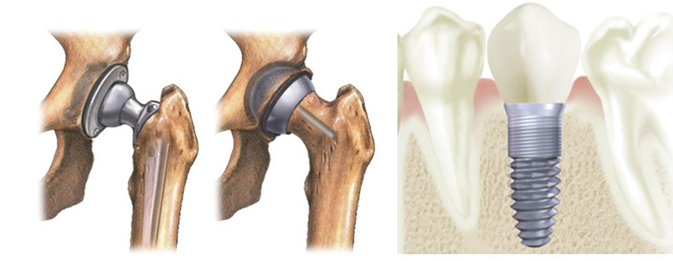 Examples of titanium implants include hip replacements and dental roots