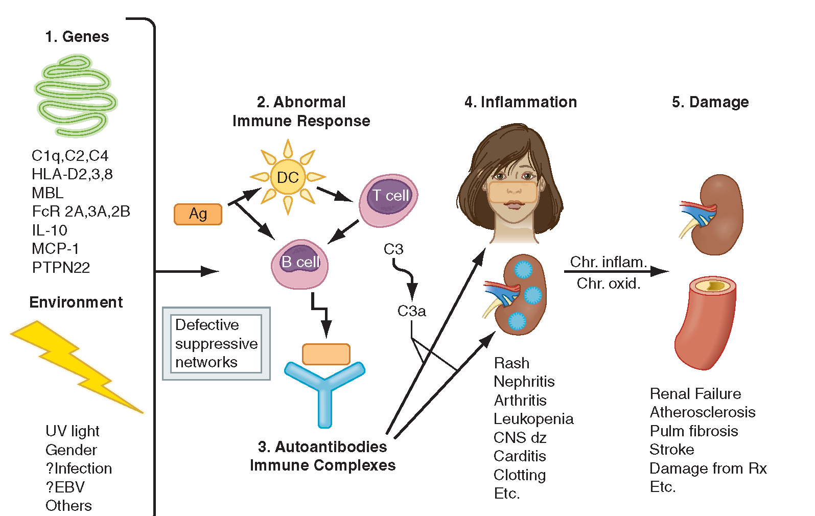 An overview of the pathophysiology behind systemic lupus erythematosus - SLE (Source: What when how)