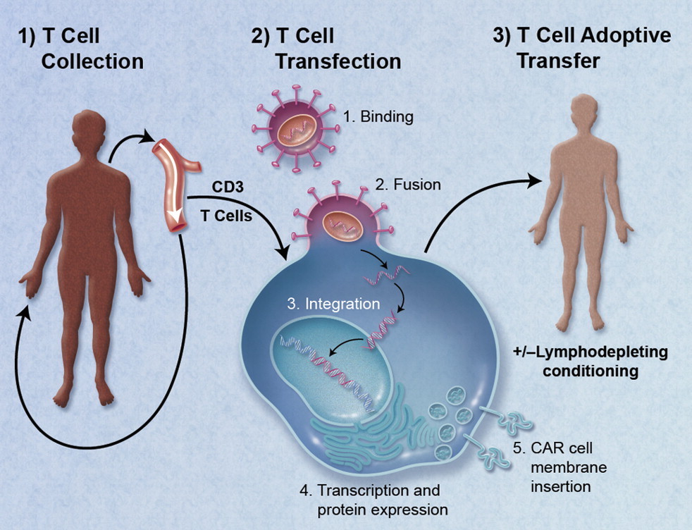 CAR-Engineered_T-Cell_Adoptive_Transfer - edited