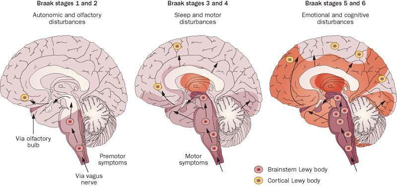 Parkinsons_braak_cns_neurodegenerative