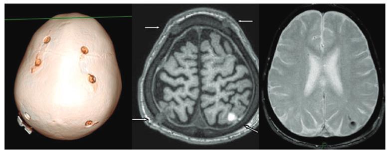 lysogene_aav_gene_therapy_rare_disease_sanfilippo_syndrome