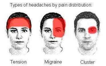 migraine_teva_heptares