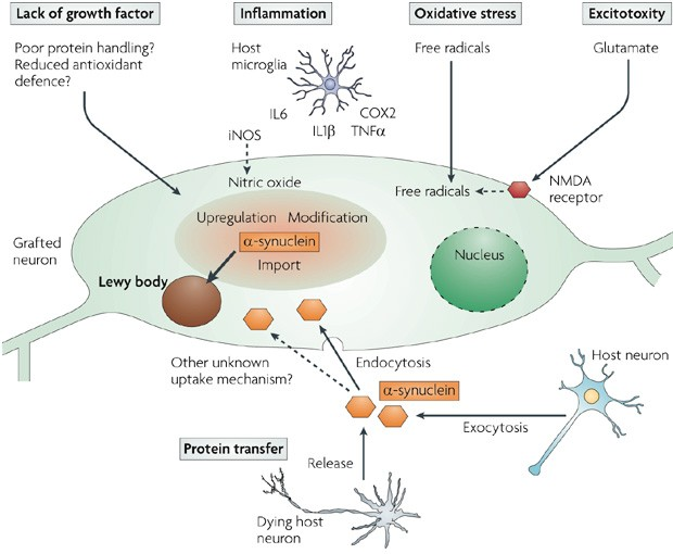 parkinson_lewy_body_causes_mechanism_CNS