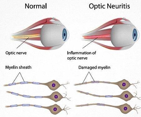 biotechs_Cytotools_ms_optial_neuritis_medday_black_friday_phase_III_failure