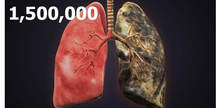 lung_cancer_carcinoma_small_Cell_deadliest_biotech_therapies