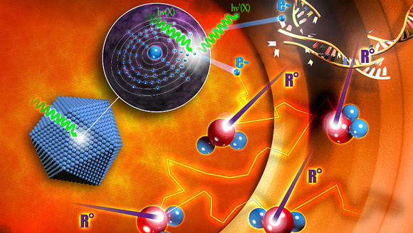 nanobiotix_radiotherapy_trial_prostate_cancer_nanomedicine