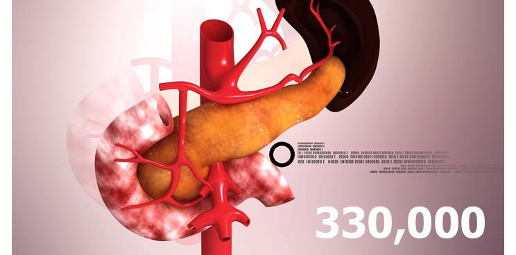 pancreatic_cancer_killer_deadliest_biotech_therapy_oncology
