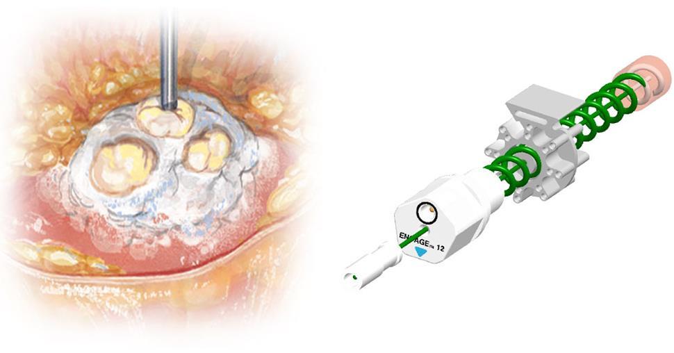 prostate_cancer_ablation_trod_medical_medtech