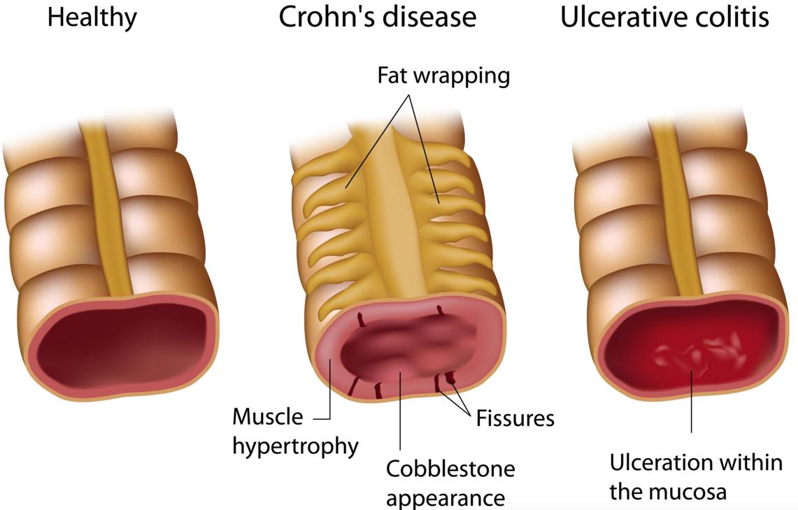 ulcerative colitis abivax HIV