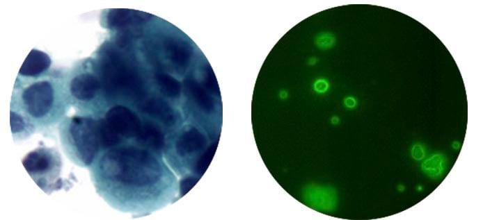 cnrs_ismo_vitadx_bladder_cancer_diagnostics_fluoresence_onera