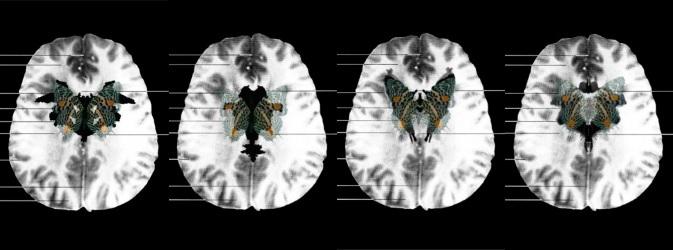 suzanne_anker_mri_butterfly_neuroculture_bioart_nature_reviews