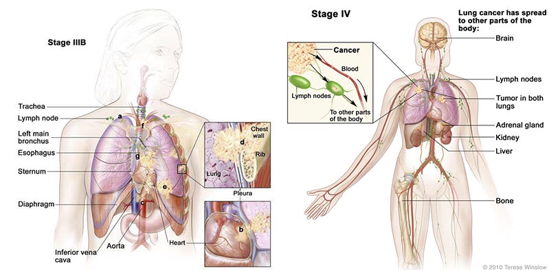 tedopi_nsclc_lung_ose_pharma_cancer_atlante