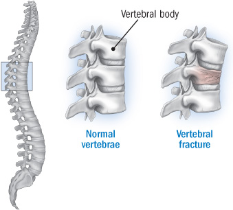 vertebral_fracture_denosumab_osteoprorsis_ucb_amgen