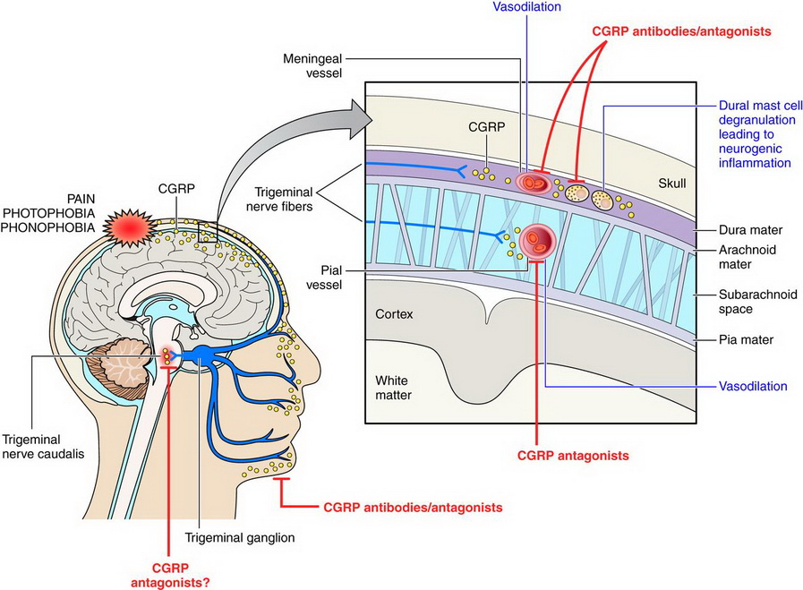 CGRP-mechanisms_migraines_therapy_biotech_neurologicl