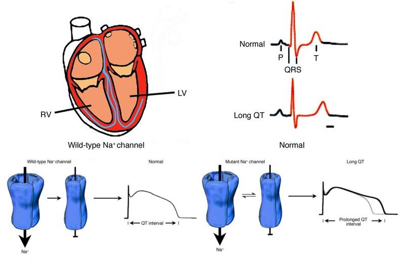 cardiac_risk_drug_discovery_mitrion