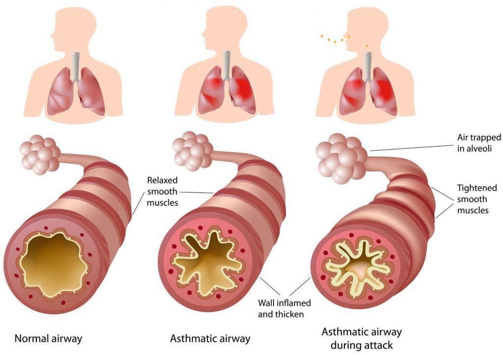 severe_asthma_tevas_reslizumab_cinqair