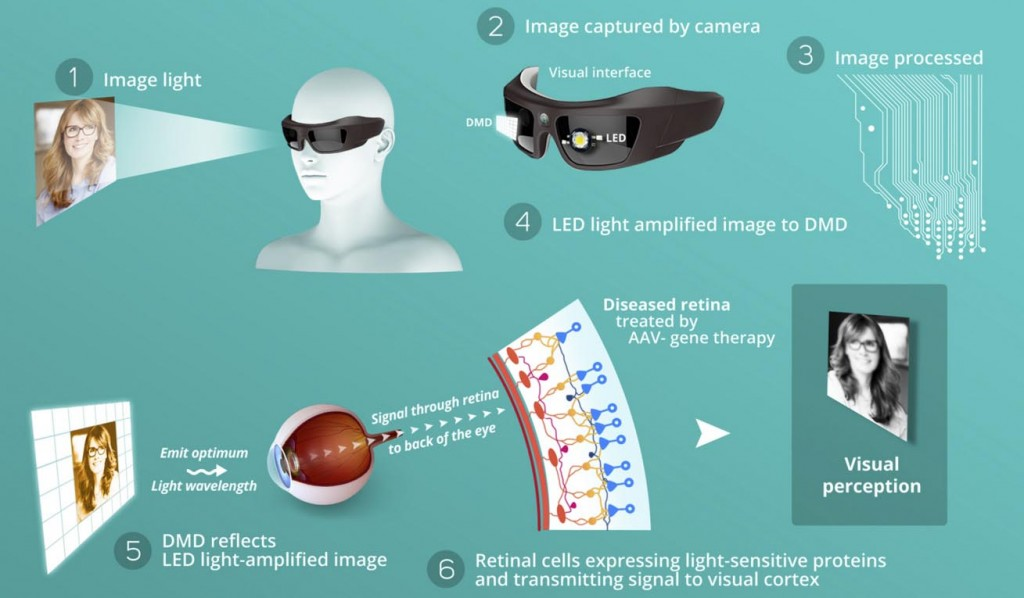 biomimetic_goggles_biotech_GenSight_vision_blindness_LHON_retina_opthalmology_prostheses_medtech