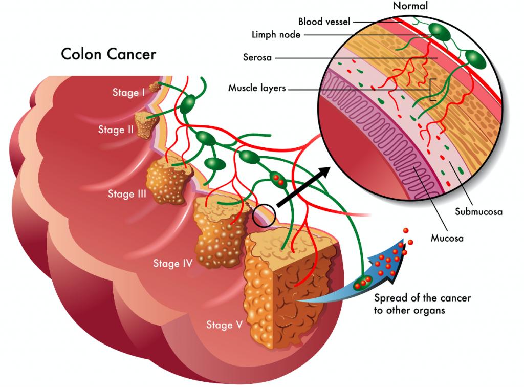 colorectal_cancer_epigenomics_epiprocolon_stages_colon