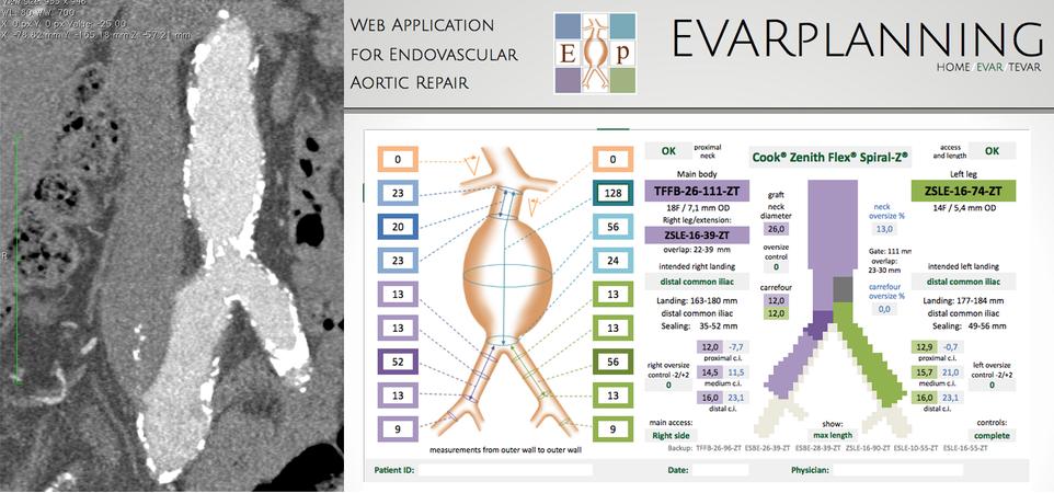 endovascular_aortic_replair_evar_planning_startup_italy_bioupper_accelerator