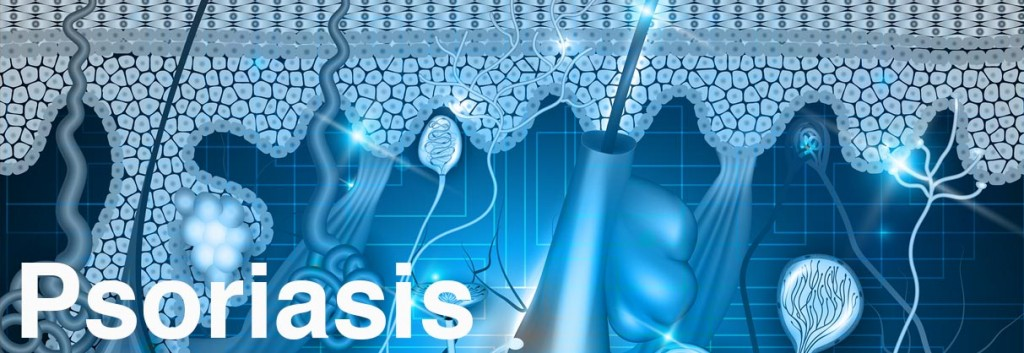 psoriasis_disease_autoimmune_endocrinology_lupus_biotech_medicine