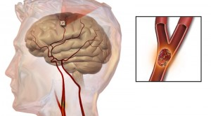 ischemic stroke boehringer ingelheim cardiovascular