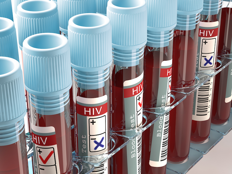 HIV cure 2020 research blood tests