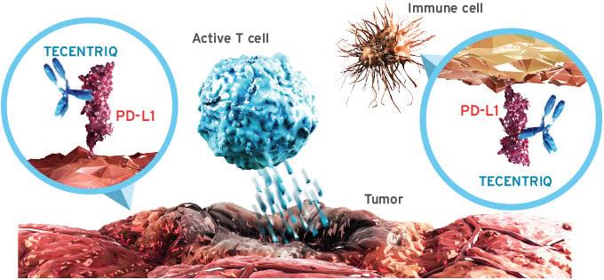 Roche Tecentriq PD-L1 cancer Medical Biotechnology