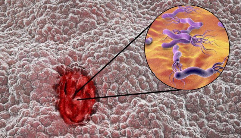 Enterome microbiomics