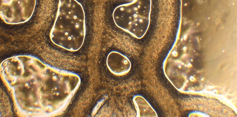 Physarum polycephalum under the microscope