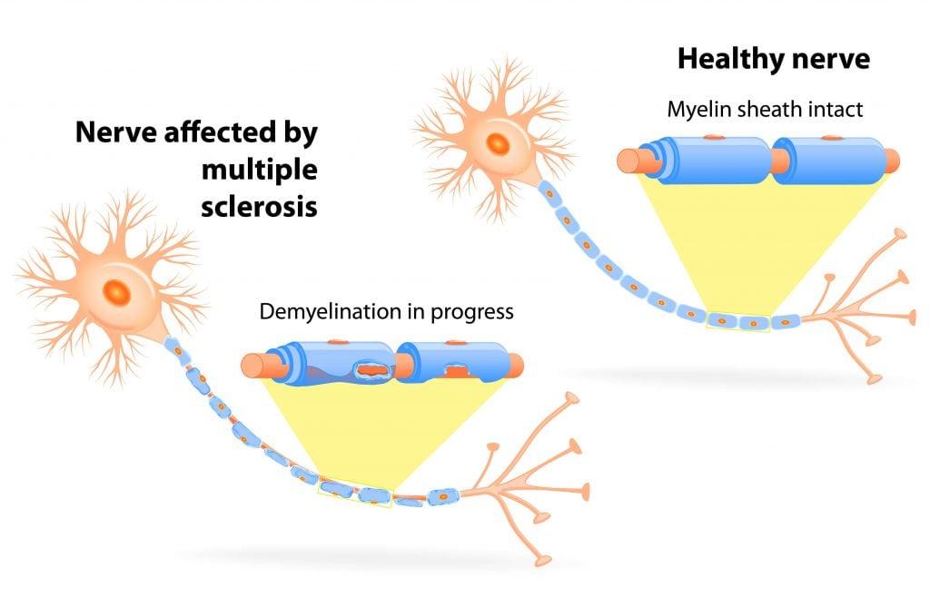 MS nerves