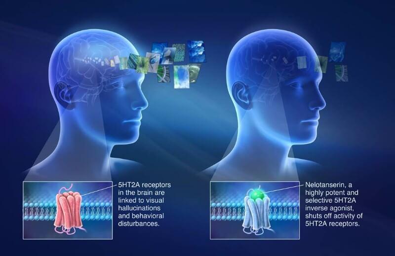 Nelotanserin axovant sciences dementia