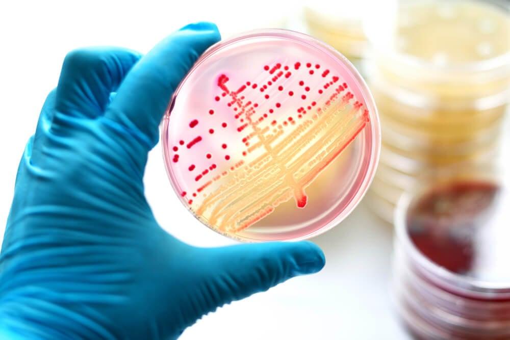 Bacterial Dish