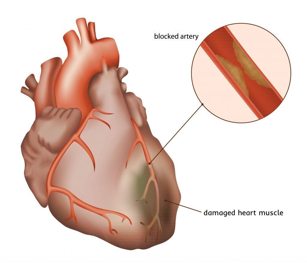 New Cardiac Stem Cell Therapy Passes Phase I Ii Trials