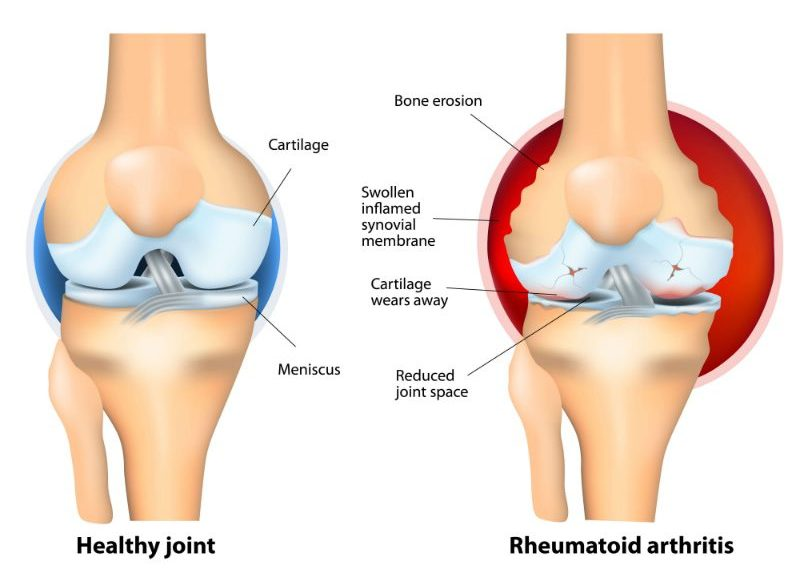 Rheumatoid Arthritis_joints