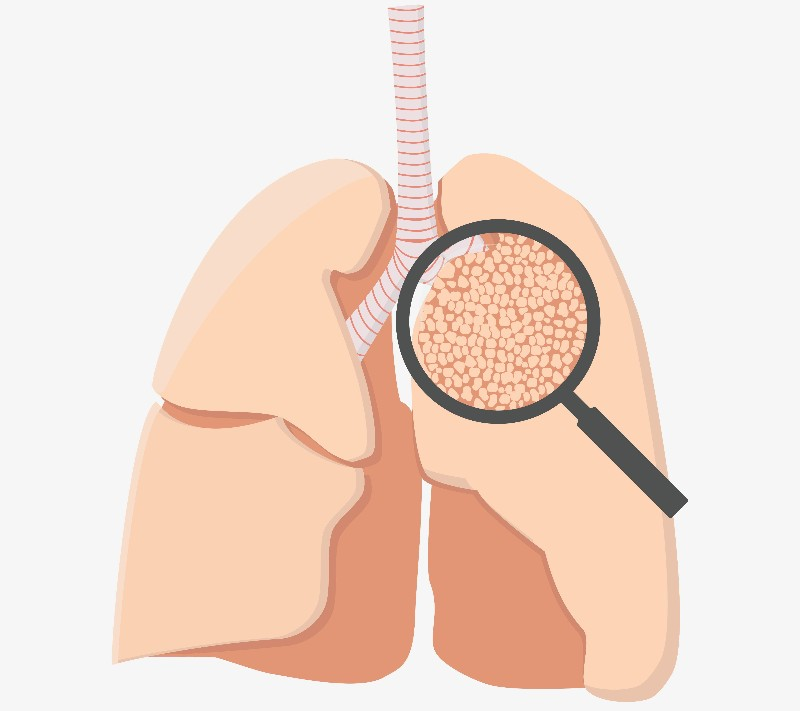 Transgene lung cancer first line BMS
