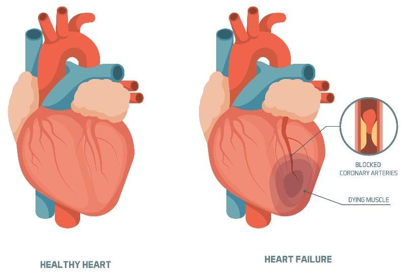 Cardior Pharmaceuticals fundraising heart failure