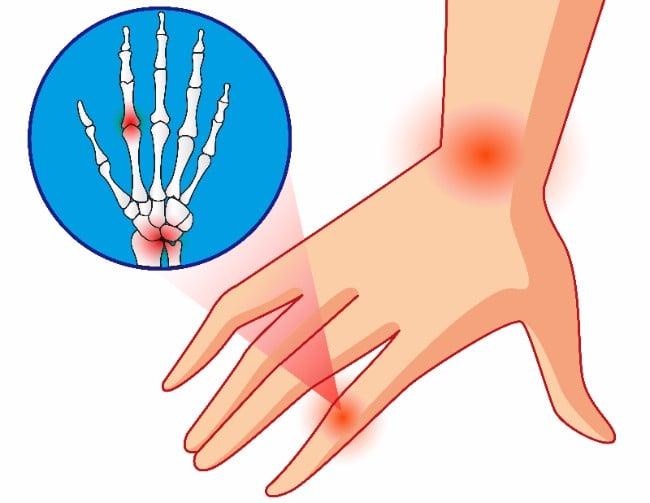 Merck Ablynx milestone nanobody osteoarthritis