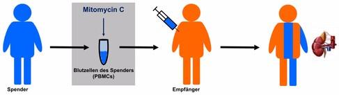 Tolerogenixx cell therapy transplant - Edited