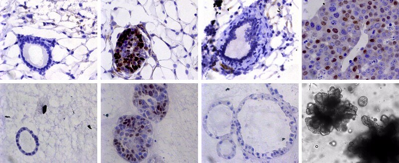 EMBL scientists used mice (top) and organoids (bottom) in which they could induce tumours (2nd column), mimic perfect treatment and study minimal residual disease (3rd column), and analyse tumour recurrence (4th column)
