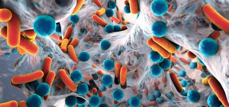 Microbiome companies opportunities