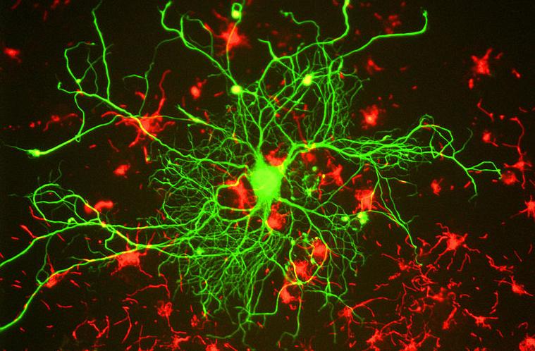 neuron cell culture organoid minibrain