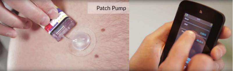 Cellnovo artificial pancreas diabetes