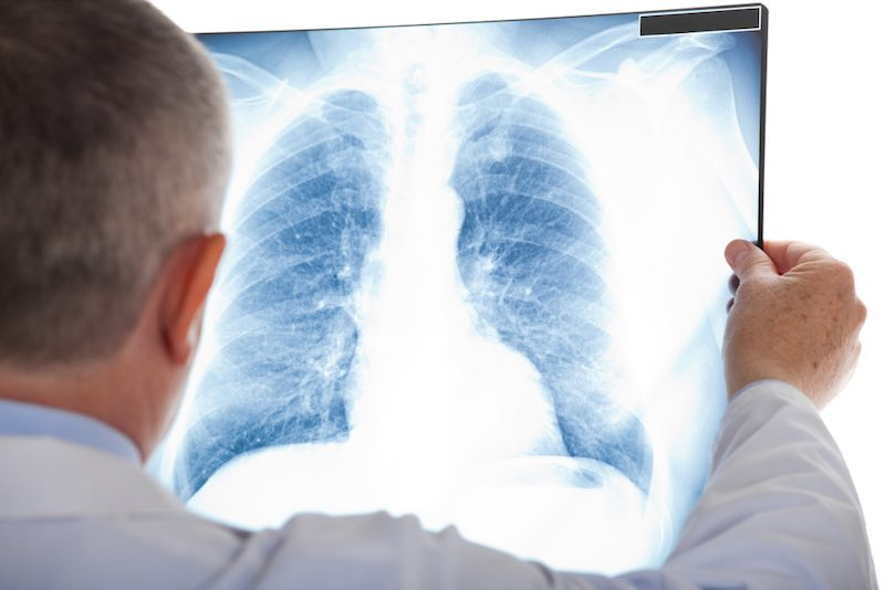 galapagos-glpg1690-idiopathic-pulmonary-fibrosis1
